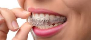 Top Dentist Dubai| Best Invisalign Treatment in Dubai - Dr. Nazeer Ahmed | Cheapest and Affordable Invisalign