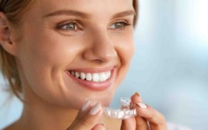 Invisalign Dubai | Invisalign 2018 Latest News - Invisalign before and after |