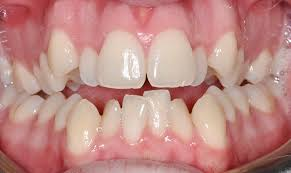 Dentist Dubai | Dental Crowding Treatment - Braces Dubai
